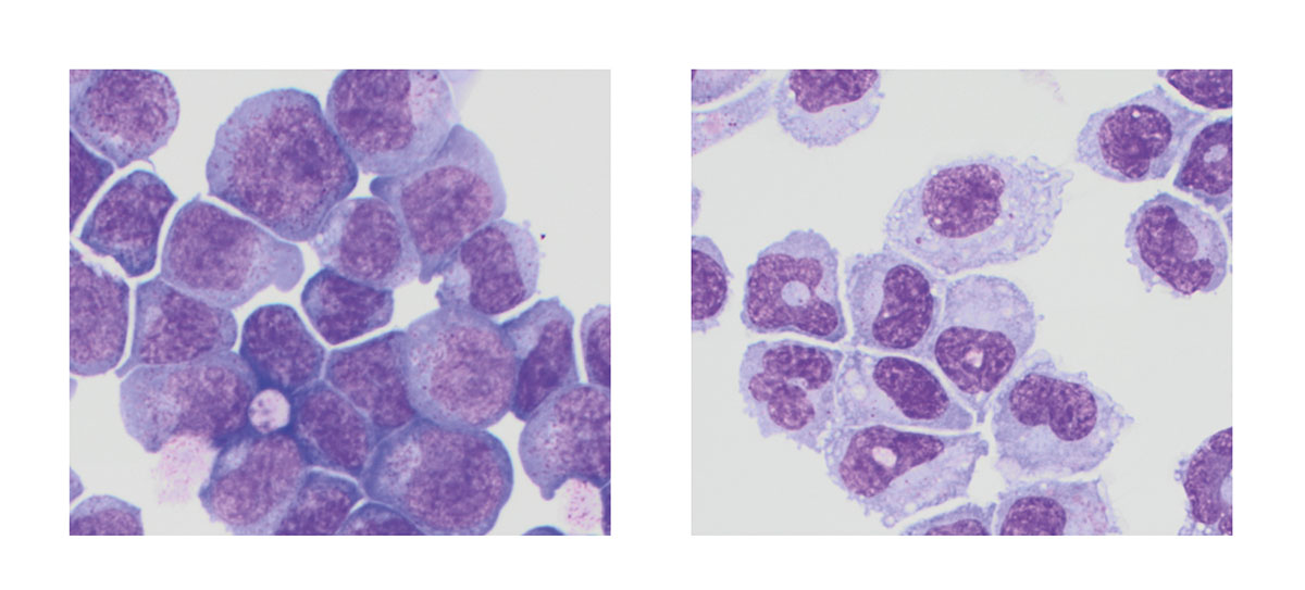 Leukämiezellen
